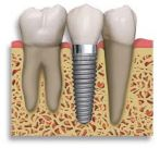 dental implant imagery... tooth screwed professionally into jaw bone