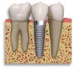 DentalImplant0