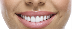 Women's mouth smiling with lovely white teeth